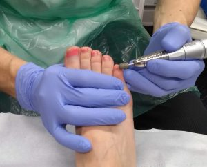 Patient having a toe nail reduced with a nail drill.