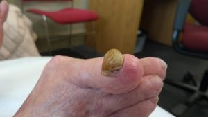 Right 1st Toenail before Treatment