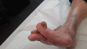 Right Foot 1st Toenail Thickened