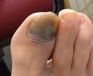 Damaged Toe Nail - Also called a Subungal Hematoma.