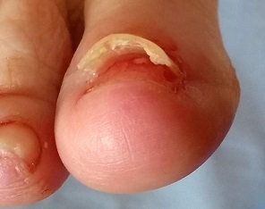 Right Big Right Big Toe Nail - Lifted, front view