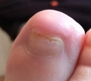 Right Big Toe, 6 months after Trauma.