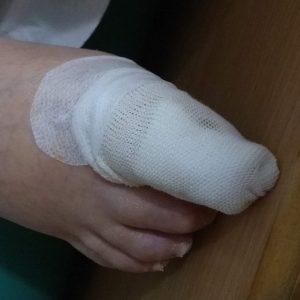 Right Toe, Bandaged